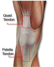 Physiozone | Patella | Quad Tendon